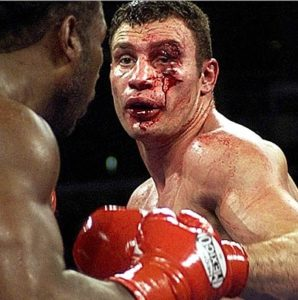 boxing critical injuries